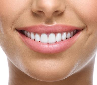 Zoom!-Teeth-Whitening